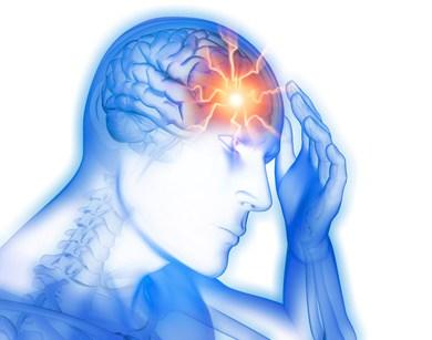 Akute Kopfschmerzen